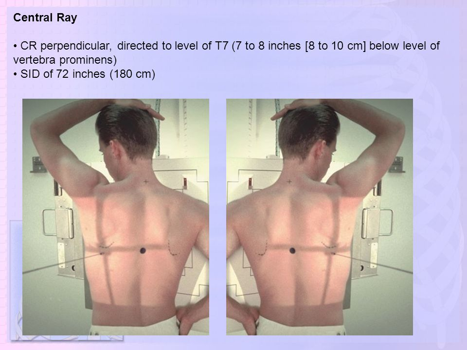 Central Ray • CR perpendicular, directed to level of T7 (7 to 8 inches [8 to 10 cm] below level of vertebra prominens)